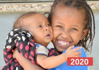 Atención primaria y reducción de la malnutrición en clínica pediátrica en Etiopía